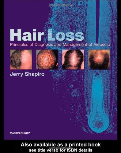 Hair Loss: Principles of Diagnosis and Management of Alopecia: Jerry Shapiro