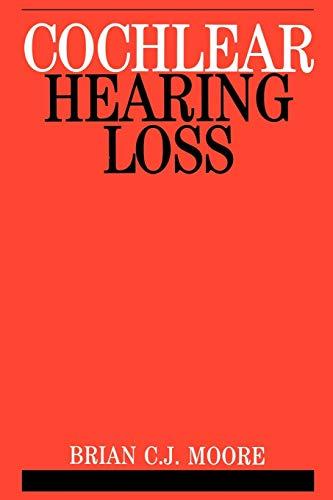 9781861560919: Cochlear Hearing Loss