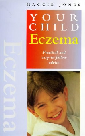 9781862042094: Eczema: Practical and Easy-To-Follow Advice (Your Child)