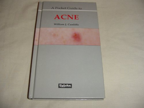 A Pocket Guide to Acne: Cunliffe, W.J.