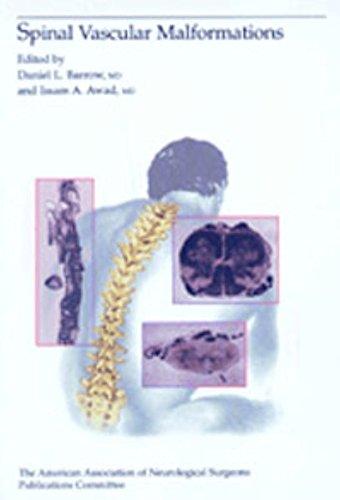 Spinal Vascular Malformations (Reihe, AAN)