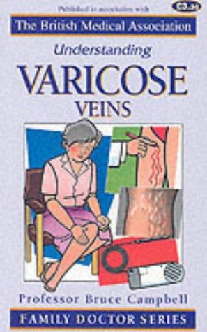 Understanding Varicose Veins (Family Doctor Series): Campbell, Bruce