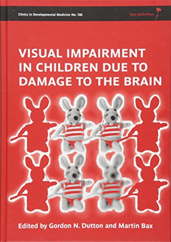 9781898683865: 186: Visual Impairment in Children due to Damage to the Brain
