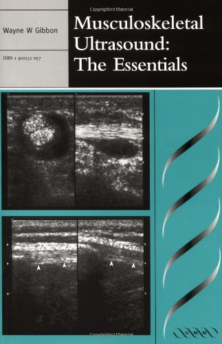 9781900151054: Musculoskeletal Ultrasound: The Essentials (Greenwich Medical Media)