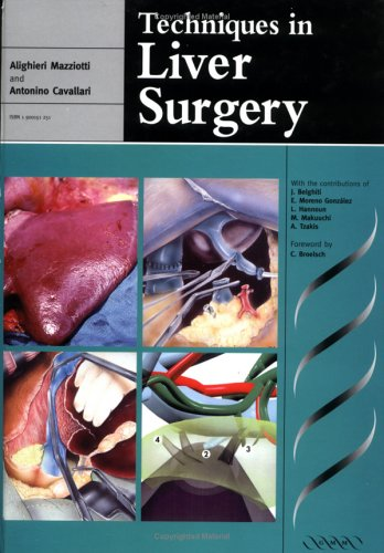 9781900151252: Techniques in Liver Surgery (Greenwich Medical Media)