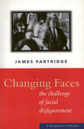 9781900928120: Changing Faces : The Challenge of Facial Disfigurement