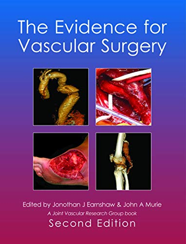 9781903378458: The Evidence for Vascular Surgery