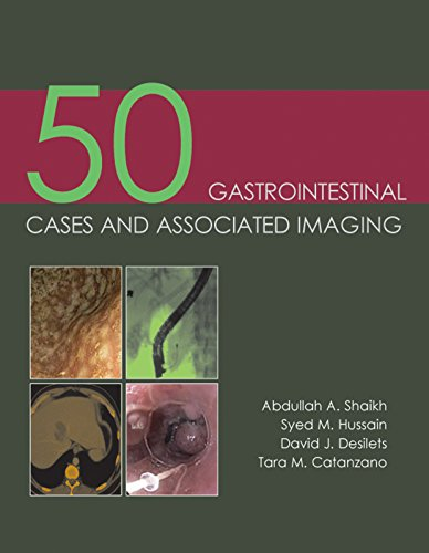 50 Gastrointestinal Cases and Associated Imaging: Abdullah A. Shaikh; Syed M. Hussain; David J. ...