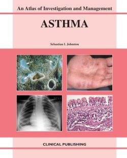 9781904392187: Asthma: An Atlas of Investigation and Diagnosis