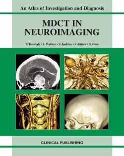 9781904392682: Multidetector CT in Neuroimaging: An Atlas and Practical Guide