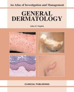 General Dermatology An Atlas of Investigation and Management