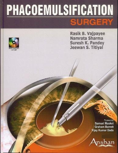 Phacoemulsification Surgery: Namrata, M.D. Sharma,