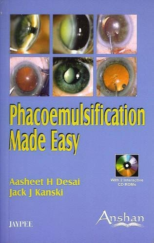 Phacoemulsification Made Easy: Aasheet H. Desai;