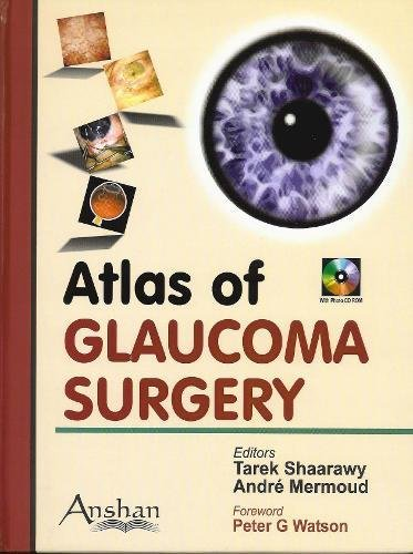 9781904798675: Atlas of Glaucoma Surgery