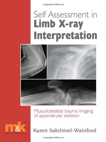 Self-assessment in Limb X-ray Interpretation: Musculoskeletal Trauma: Sakthivel-Wainford, Karen