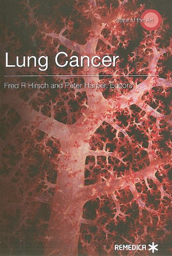 9781905721566: Lung Cancer (State of the Art)