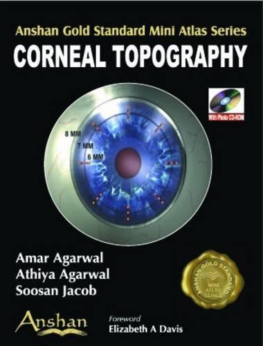 9781905740109: Mini Atlas of Corneal Topography (Anshan Gold Standard Mini Atlas)