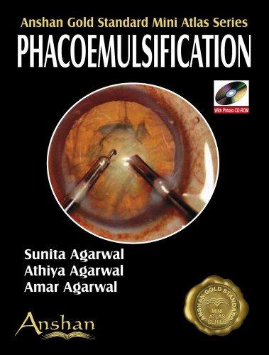 Mini Atlas of Phacoemulsification: Agarwal Amar Agarwal