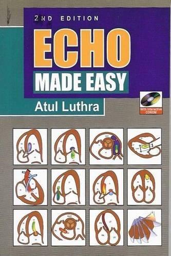 9781905740680: Echo Made Easy
