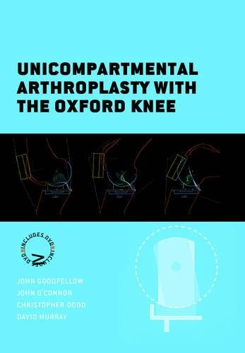9781906884789: Unicompartmental Arthroplasty with the Oxford Knee