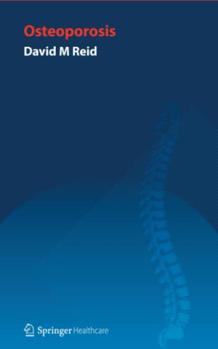 9781907673078: Handbook of Osteoporosis