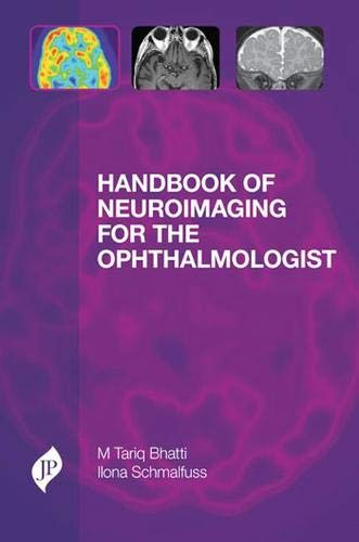 Handbook of Neuroimaging for the Ophthalmologist: M. Tariq Bhatti,Ilona Schmalfuss