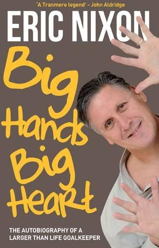 9781908695147: Big Hands Big Heart - Eric Nixon
