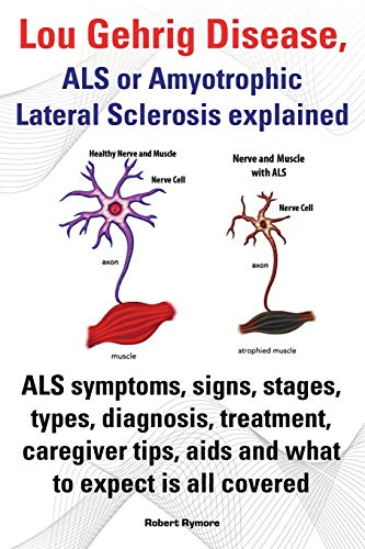 9781909151604: Lou Gehrig Disease, ALS or Amyotrophic Lateral Sclerosis Explained. ALS Symptoms, Signs, Stages, Types, Diagnosis, Treatment, Caregiver Tips, AIDS and
