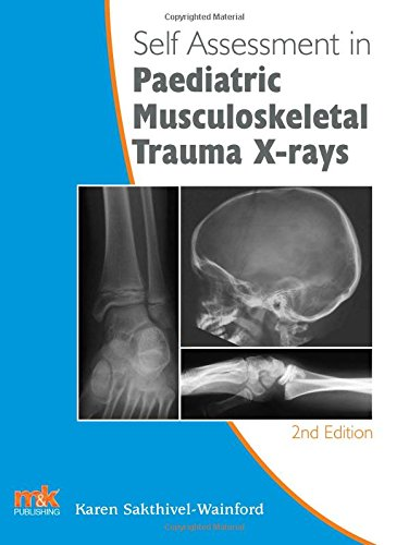Self-Assessment in Paediatric Musculoskeletal Trauma X-Rays (Paperback): Karen Sakthivel-Wainford