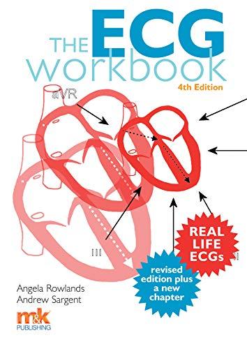 9781910451267: The ECG Workbook 4/ed
