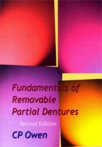 9781919713618: Fundamentals of Removable Partial Dentures