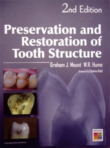 Preservation and Restoration of Tooth Structure: W R Hume, G J Mount
