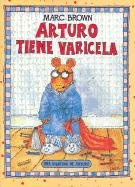9781930332003: Arturo tiene varicela/Arthur's Chicken Pox (Una aventura de Arturo/An Arthur Adventure) (Spanish Edition)