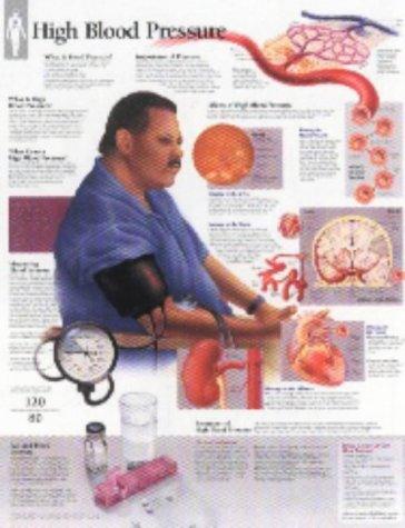 9781930633117: High Blood Pressure chart: Laminated Wall Chart