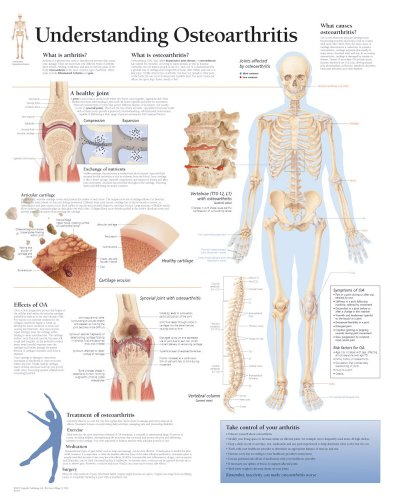 Understanding Osteoarthritis chart: Wall Chart: Scientific Publishing