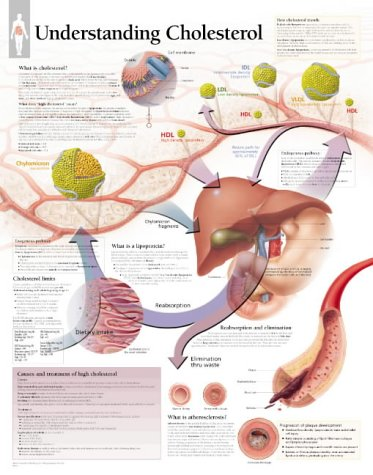Understanding Cholesterol Chart: Wall Chart: Scientific Publishing; Various