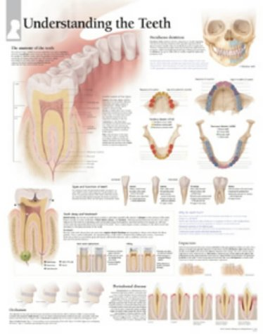 9781930633889: Understanding The Teeth chart: Wall Chart