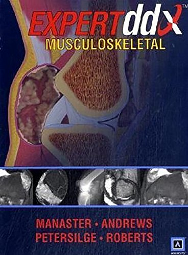 EXPERTddx: Musculoskeletal: Published by Amirsys® (EXPERTddx (TM)): Manaster MD PhD