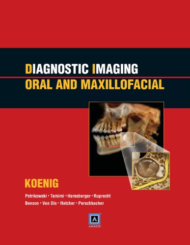 Diagnostic Imaging: Oral and Maxillofacial: Published by: Lisa J. Koenig