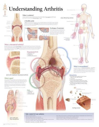 Understanding Arthritis semi-laminated anatomical wall chart: Scientific Publishing