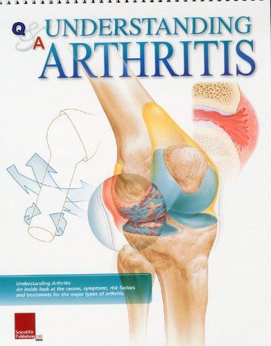 9781932922288: Understanding Arthritis Flip Chart (Flip Charts)