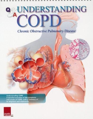 9781932922295: Understanding COPD Flip Chart (Flip Charts)