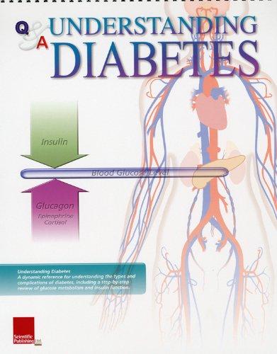 9781932922325: Understanding Diabetes Flip Chart (Flip Charts)