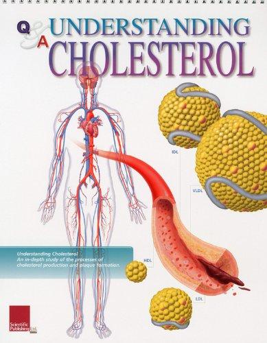 9781932922332: Understanding Cholesterol Flip Chart (Flip Charts)