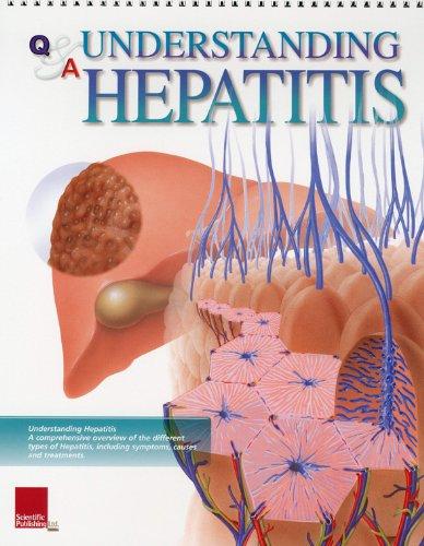 9781932922349: Understanding Hepatitis Flip Chart (Flip Charts)
