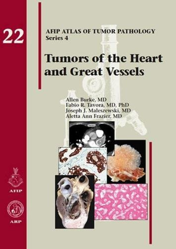 9781933477336: Tumors of the Heart and Great Vessels: Afip Atlas of Tumor Pathology Series 4 Fascicle 22 22