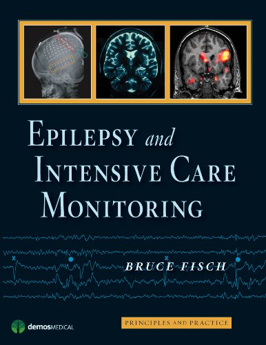9781933864136: Epilepsy and Intensive Care Monitoring: Principles and Practice