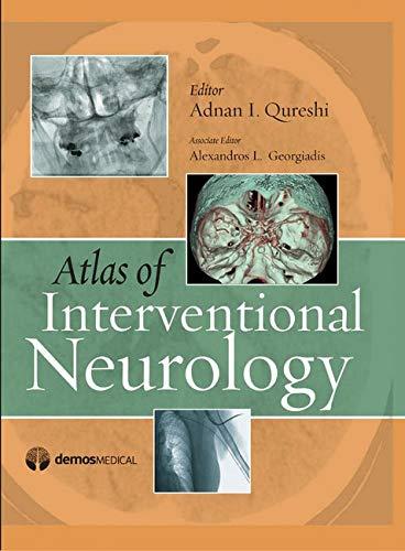 Atlas of Interventional Neurology (Hardback): Adnan I. Qureshi; MD