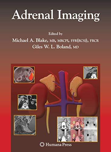 Adrenal Imaging: Michael A. Blake