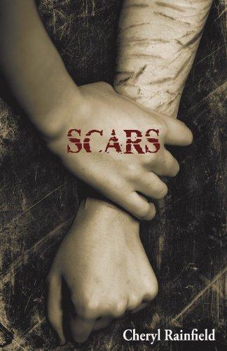 9781934813324: Scars